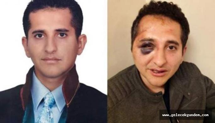 Başsavcılık, Erdoğan'ın korumaları tarafından dövülen avukatı suçladı!
