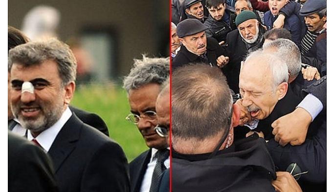 Hepimiz Kılıçdaroğlu'nu tartışıyoruz da... O yumruğu atanın başına bakın neler geldi